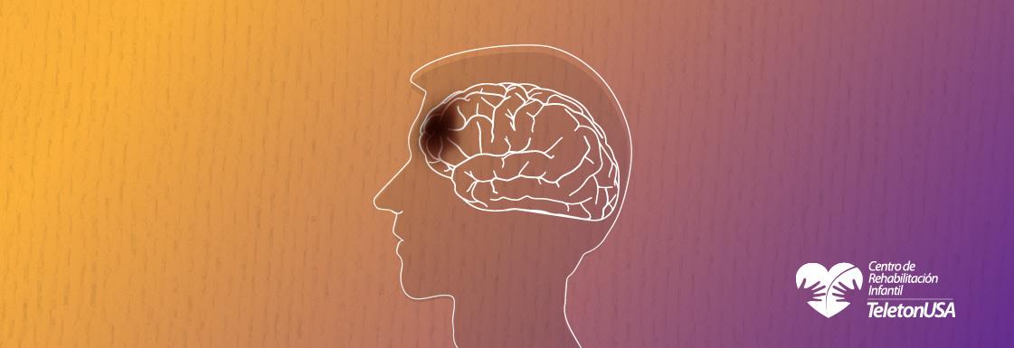 Imagen: Lesión Cerebral Traumática