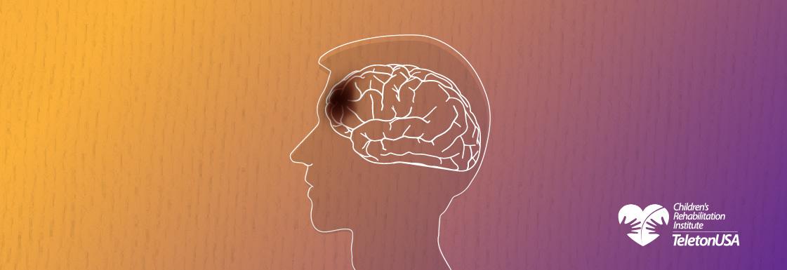 Imagen: Traumatic Brain Injury